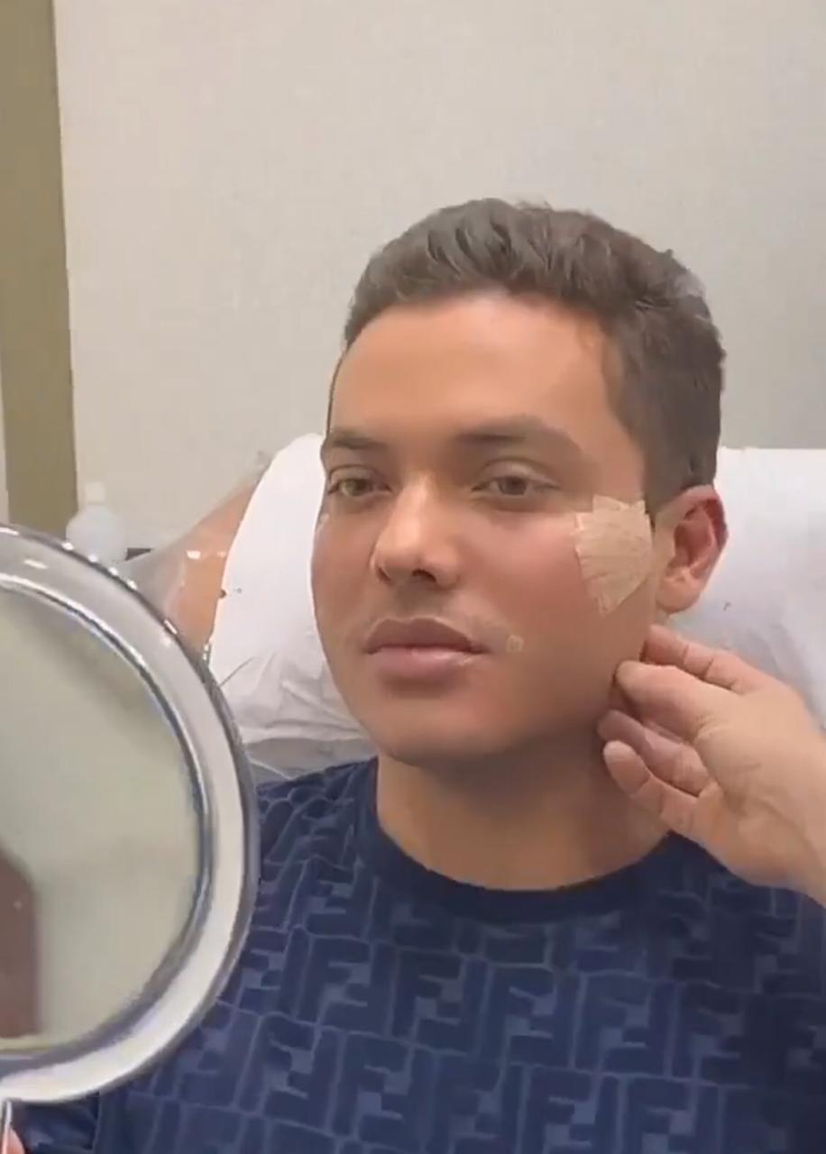 Wesley Safadão faz harmonização facial