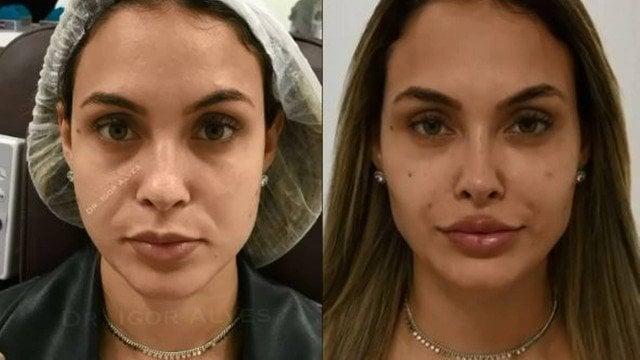 Sarah Andrade faz harmonização facial após saída do BBB21