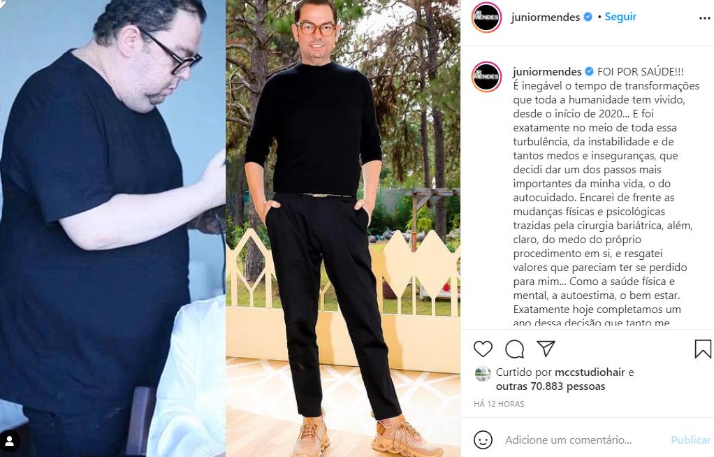 Junior Mendes mostra antes e depois da cirurgia bariátrica - Crédito: Reprodução / Instagram